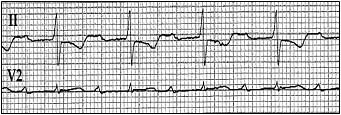 EP Exam Review - Ques. 468. This ECG Shows: