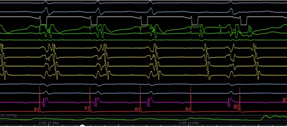 EP Exam Review - Ques. 580 - While performing incemental pacing…
