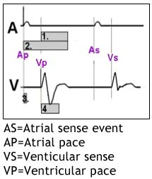 EP Exam Review - Ques. 928 - This diagram shows paced atrial and ventricular electrograms.